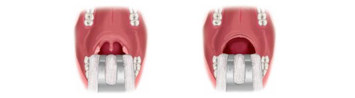 UPPP (Uvulo Palato Pharyngo Plastiek)