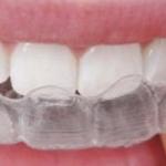 Tandenknarsen (Bruxisme)